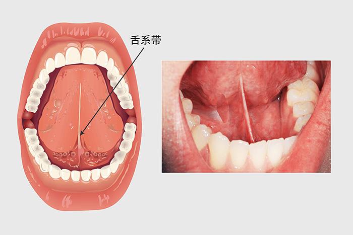 舌系带矫正术