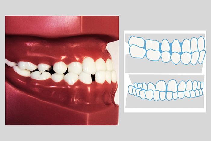 喂养不当可造成儿童乳牙反颌