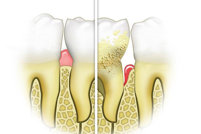 牙周病的危害和预防