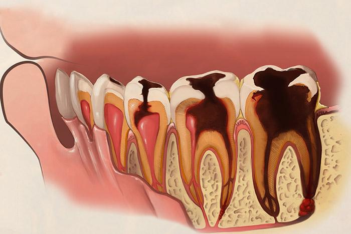 预防龋齿的两种方法