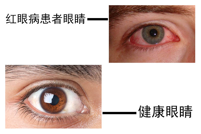 怎样预防红眼病