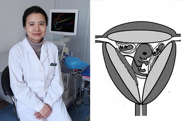 妇儿医院生殖中心成功实施一例三胎减为一胎手术