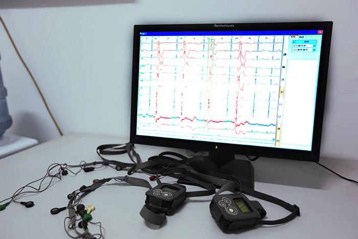 <h3>动态心电图</h3>动态心电图是一种通过随身携带的记录器连续不断地监测人体24小时心电变化,再经信息总处理系统记录的心电图 ,24小时动态心电图可确定病人的心悸,头晕,昏厥等 症状是否与心律失常有关,如极度心动过缓,心脏停搏,传导阻滞,室性心动过速等,是目前24小时动态心电图最重要,应用最广泛的情况之一。24小时动态心电图也是监测心肌缺血的标准化方法之一。观察正常人心率和心律的变化,各种心律失常,心肌梗塞,心肌病,心肌炎,所致各种心律失常,用于抗心律失常药物的评价,研究,心源性晕厥。