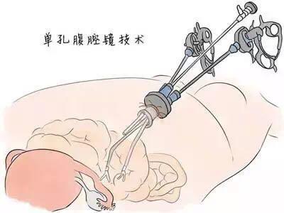 我院妇科经单孔腹腔镜切除巨大卵巢畸胎瘤